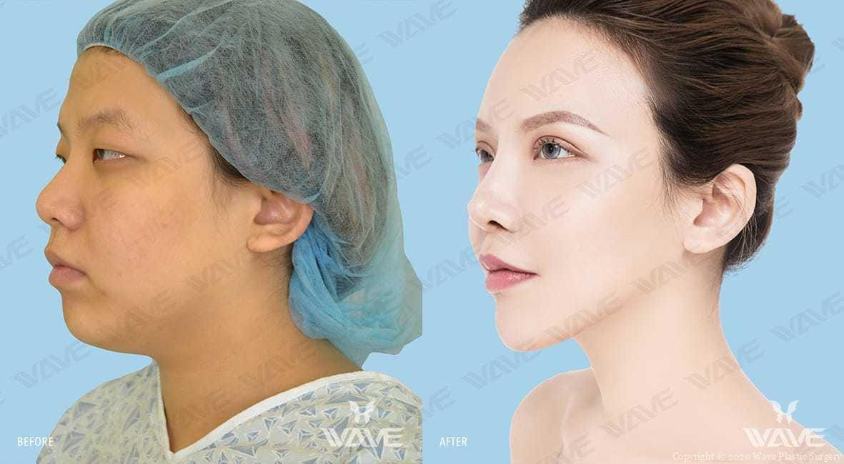 Before and after photo at Wave Plastic Surgery