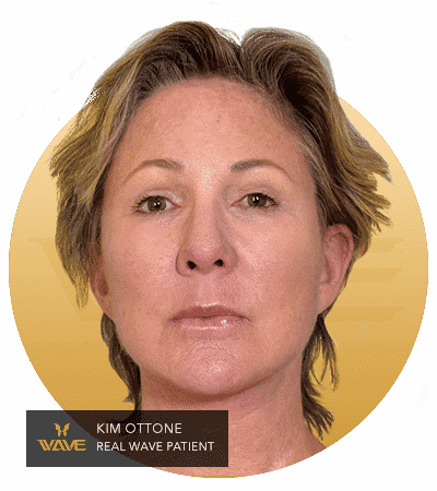 Kim Ottone - A Wave patients testimonial image