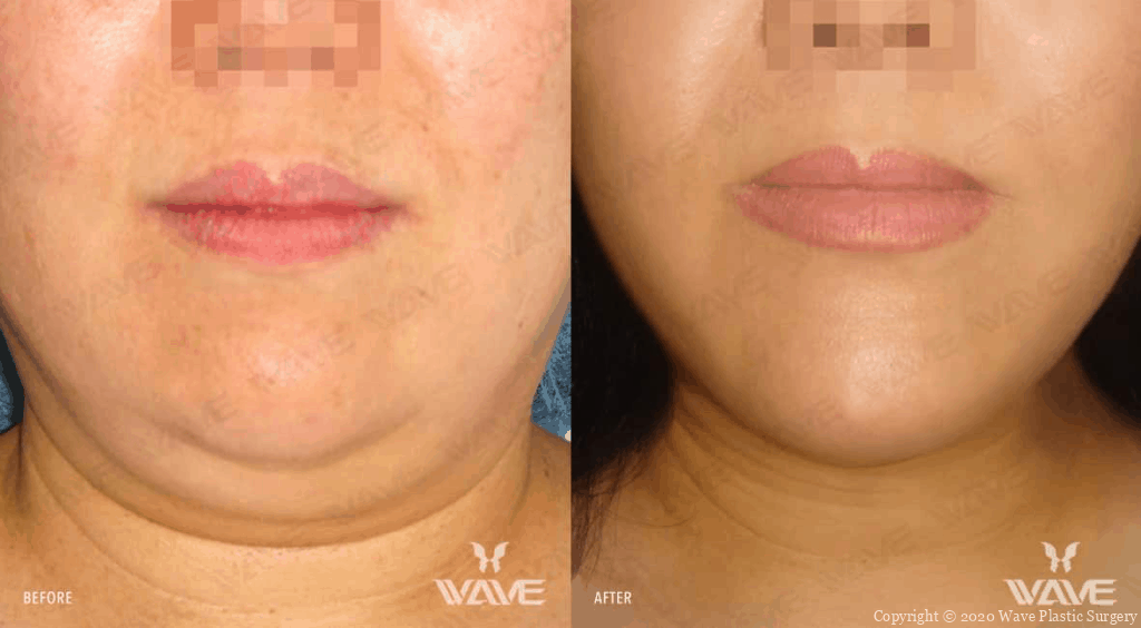 Precision Lift Before and After photos at Wave Plastic Surgery