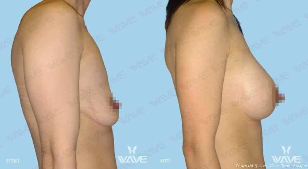 Breast Augmentation Before and After Photo