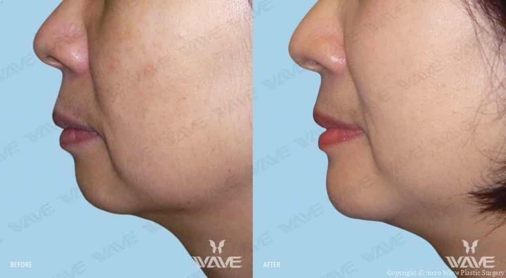 Chin Augmentation Before and After Female Photography
