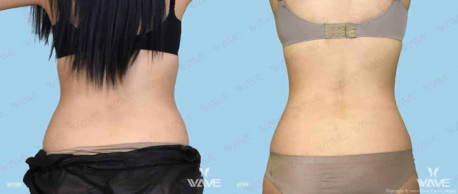 CoolSculpting Before and After photograph