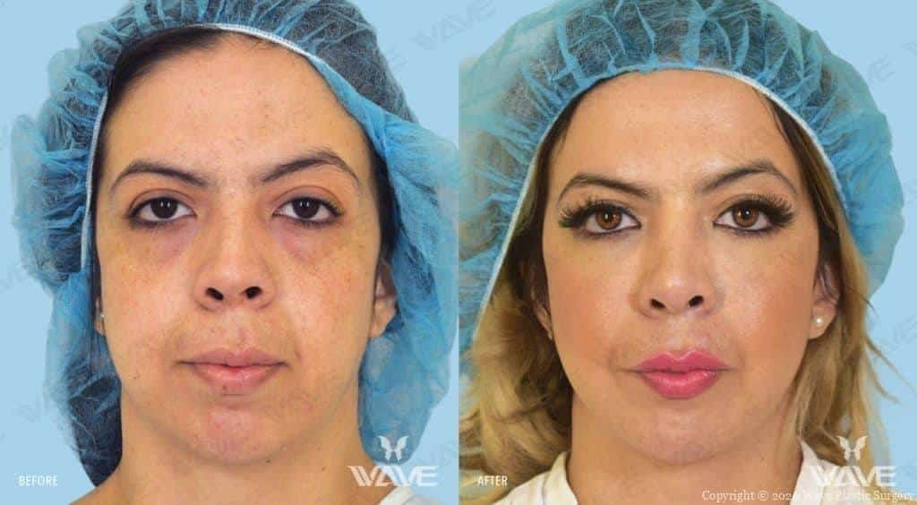 Endoscopic Mid Face Lift Before and After Photo