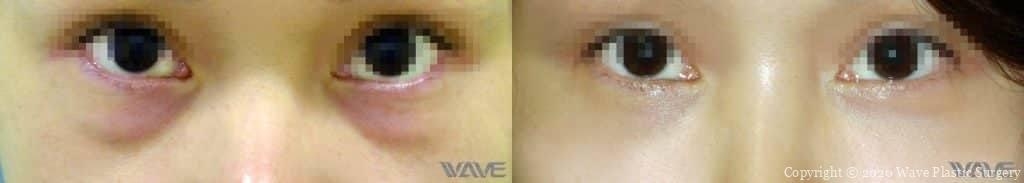 Lower Blepharoplasty before and after photograph