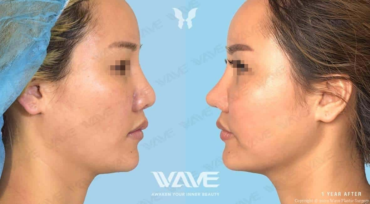 Rhinoplasty before and after photo