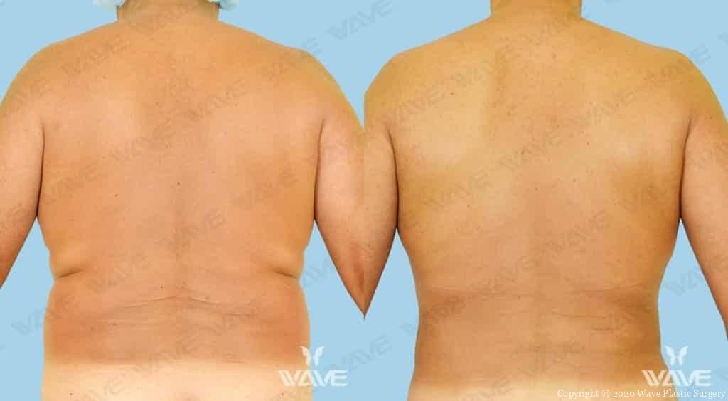 Smart Lipo Before and After Photograph