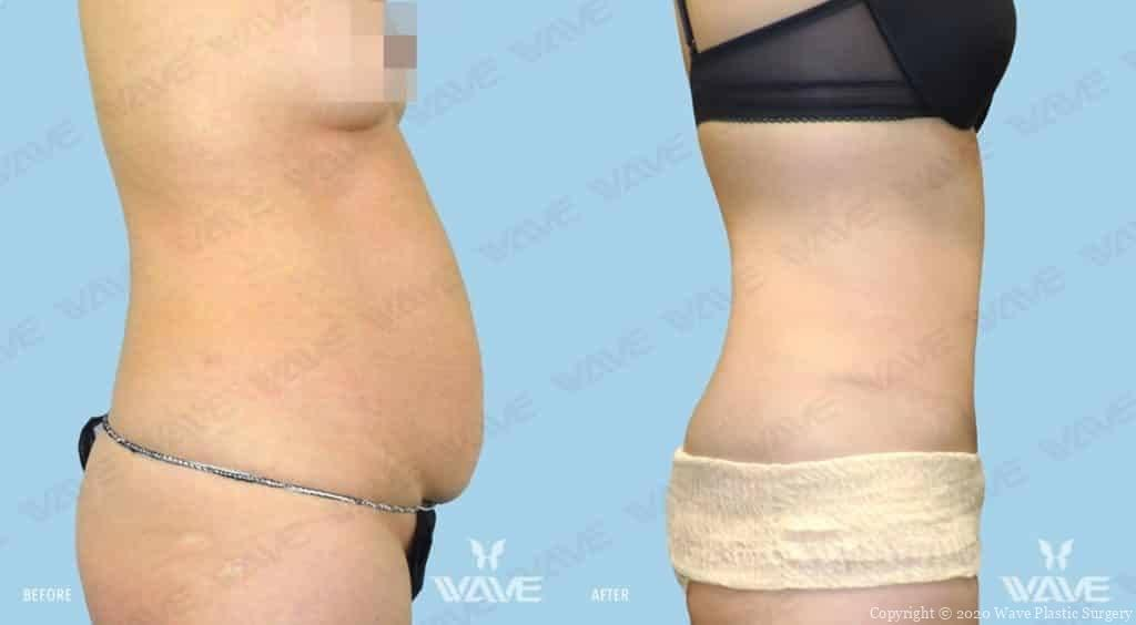 Tummy Tuck Before and After Photograph