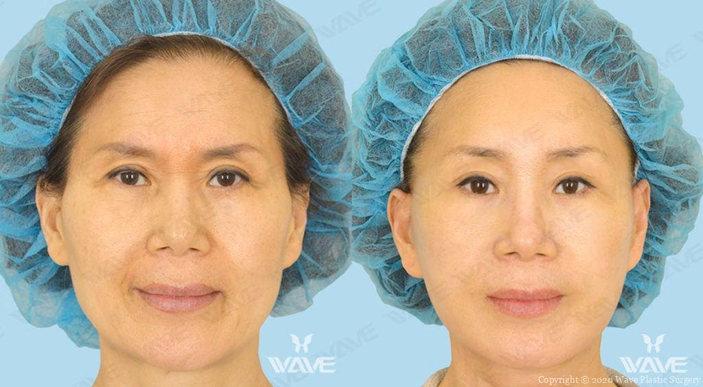 endoscopic brow lift-before and after