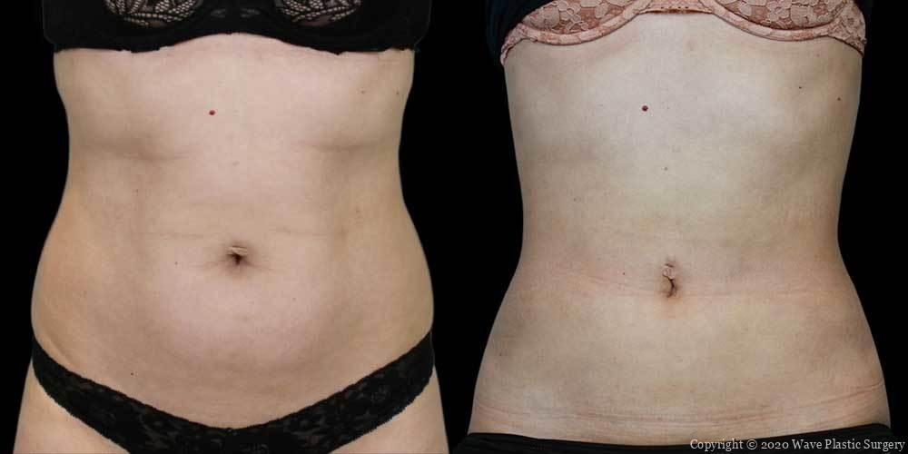 Bodytite before and after photo 1