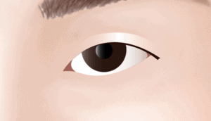 Lateral Canthoplasty Asian Blepharoplastyin Los Angeles