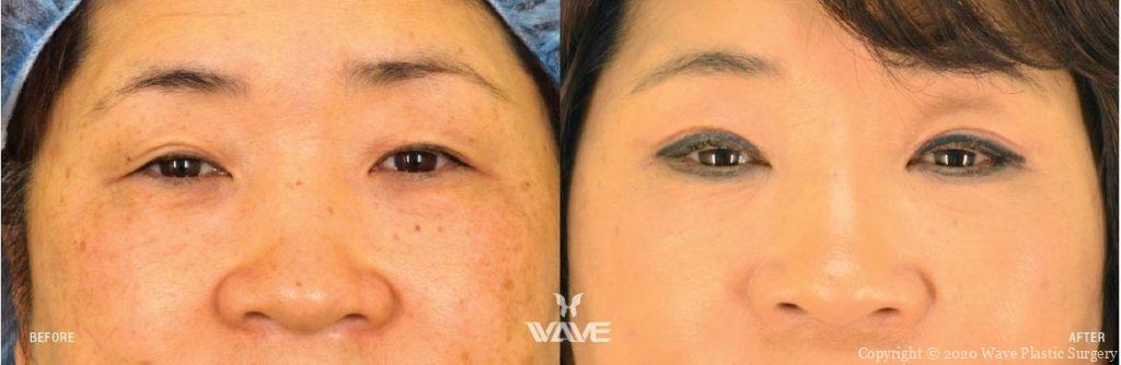 aging blepharoplasty eyelid surgery
