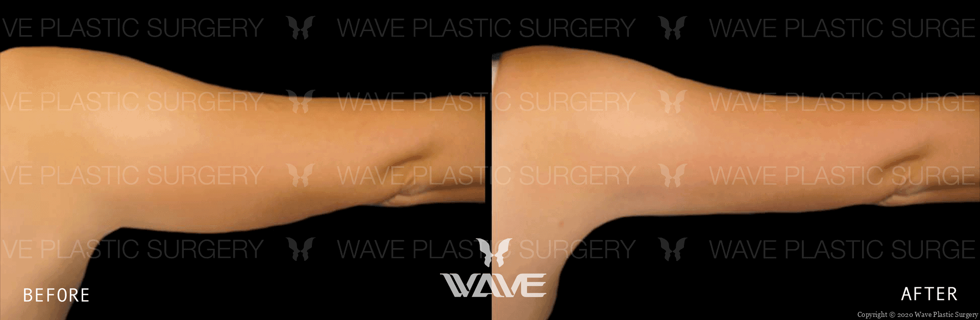 liposuction results weight loss surgery