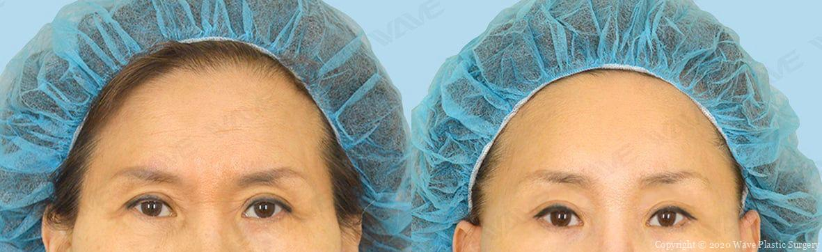Endoscopic Brow Lift Facelift Forehead and Eyebrow Surgery
