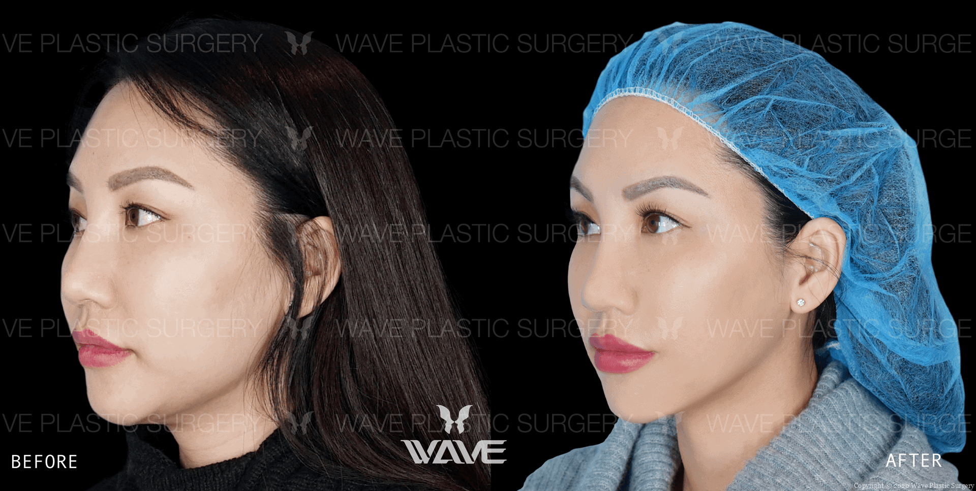 Facetite face and neck tightening before and after results