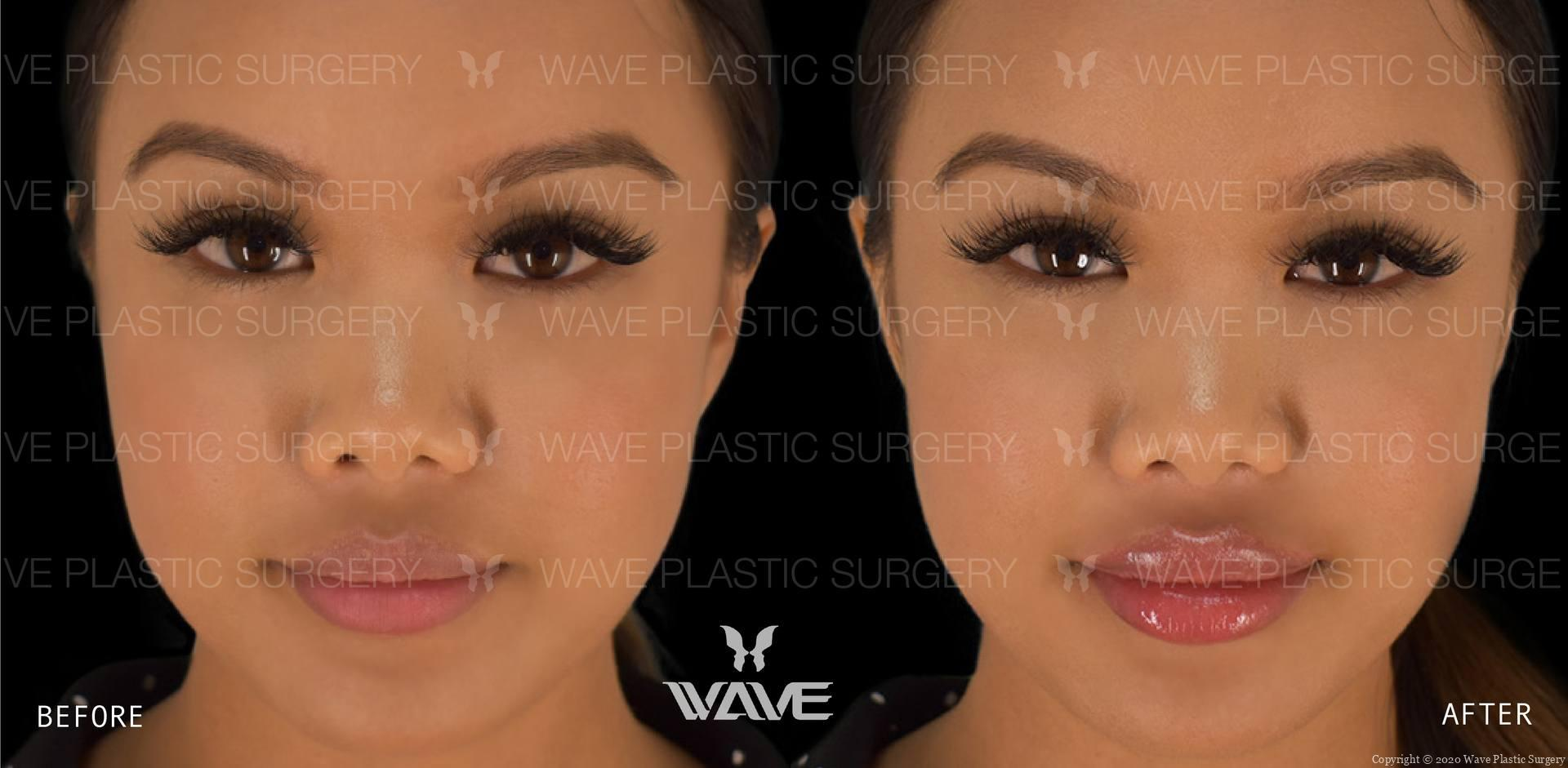 juvederm before and after results