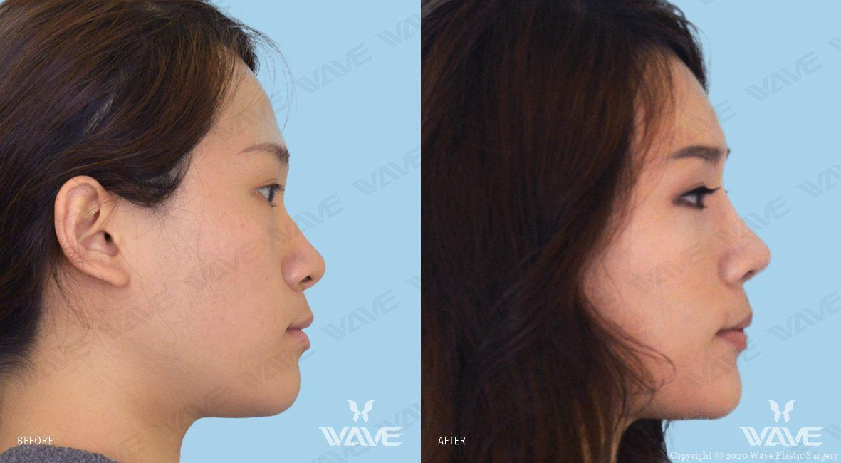 Rhinoplasty Nose Surgery