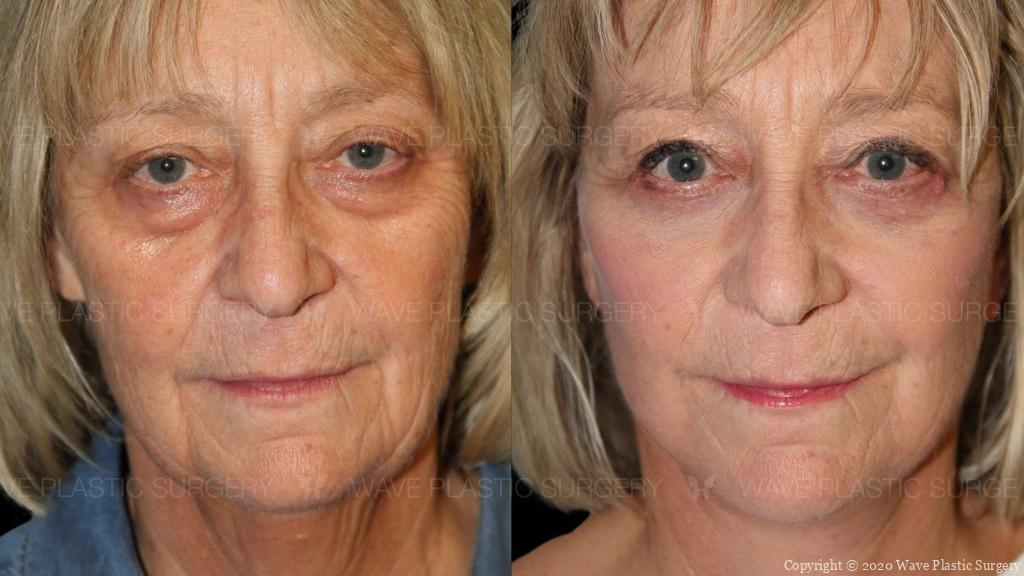 cure lift and lower eyelid surgery before and after