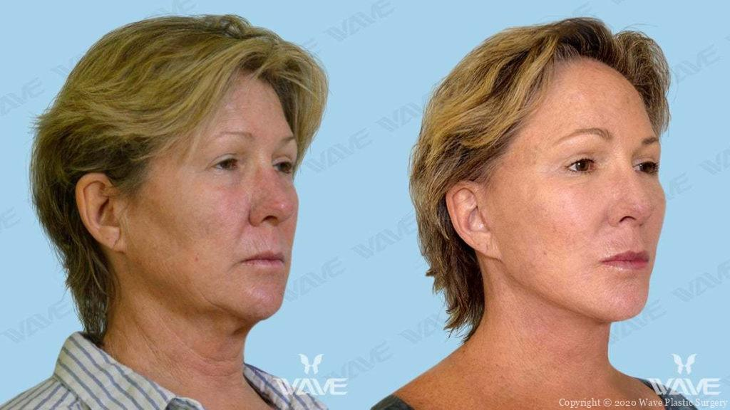Endoscopic Brow Lift, Wave Double Pure Fat Crafting, Full Face & Neck Lift before and after