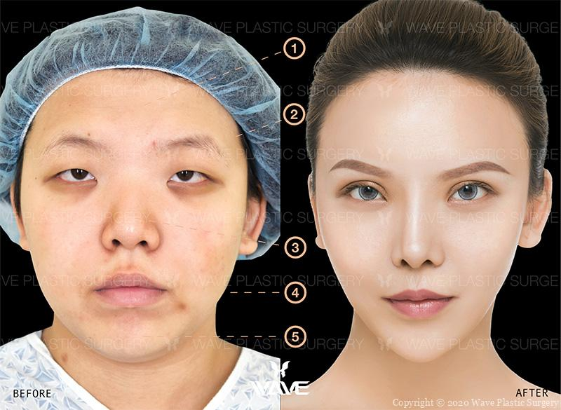 Fat Transfer, Upper Eyelid Surgery, Asian Rhinoplasty, Precision Lift, and Chin Augmentation before and after