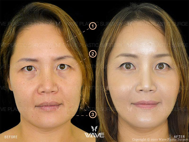 Endoscopic Brow Lift, Lower Eyelid Surgery, and Wave Lift before and after