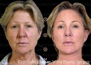 Endoscopic Brow Lift, Wave Double Pure Fat Crafting, and Full Face & Neck Lift before and after