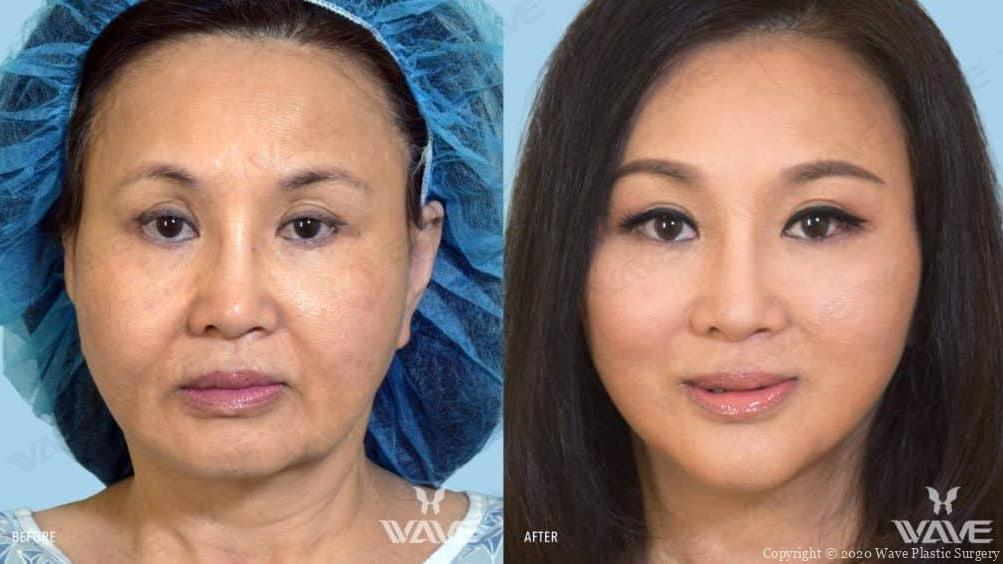 Endoscopic Brow Lift, Aging Eyelid Surgery, and Wave Lift before and after