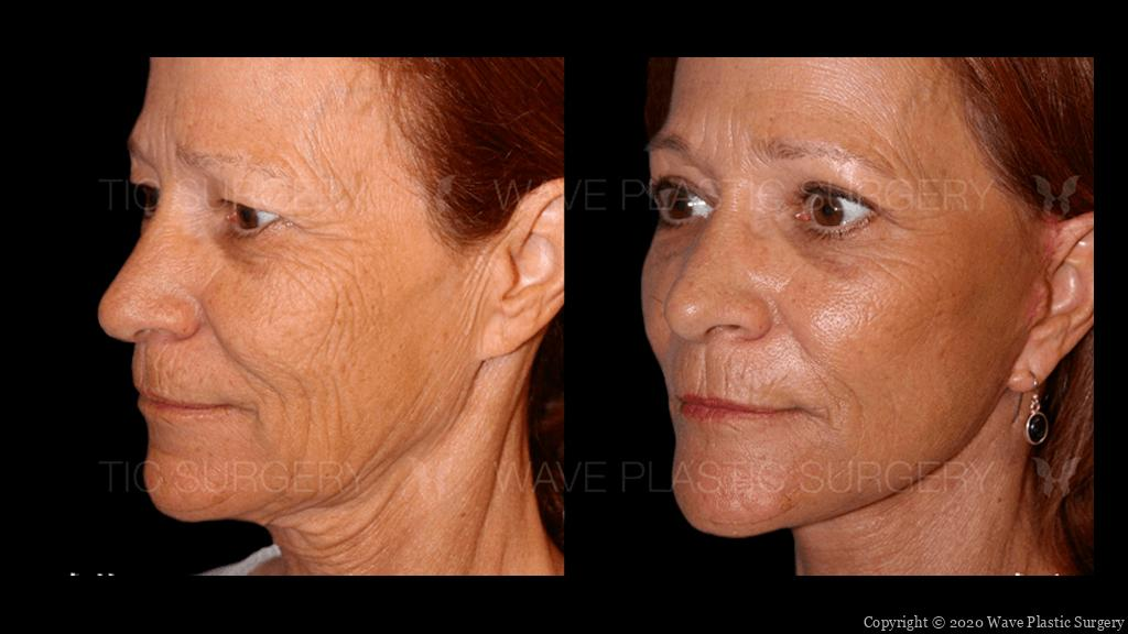 cure lift before and after