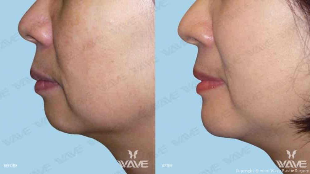 genioplasty chin augmentation before and after