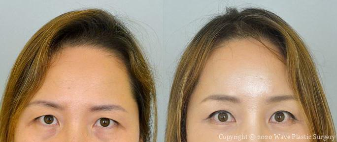 Endoscopic brow lift before and after photgraph