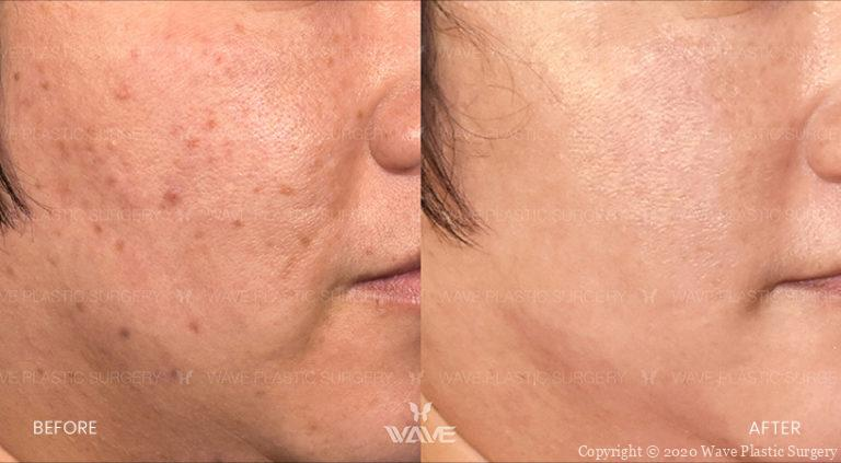 lumecca before and after patient photo