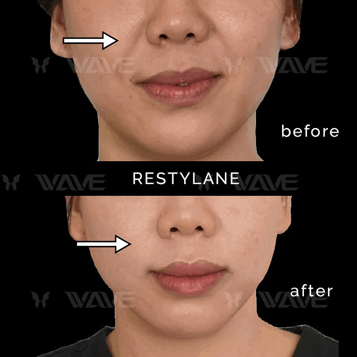 Restylane for Smile Lines