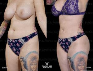 kelly eden liposuction before and after
