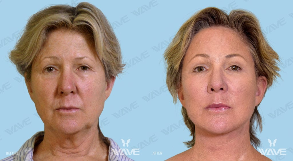 Anti-Aging Treatments For People in Their 30s, 40s, 50s, 60s, and 70s OTTONE KIM FL FULL