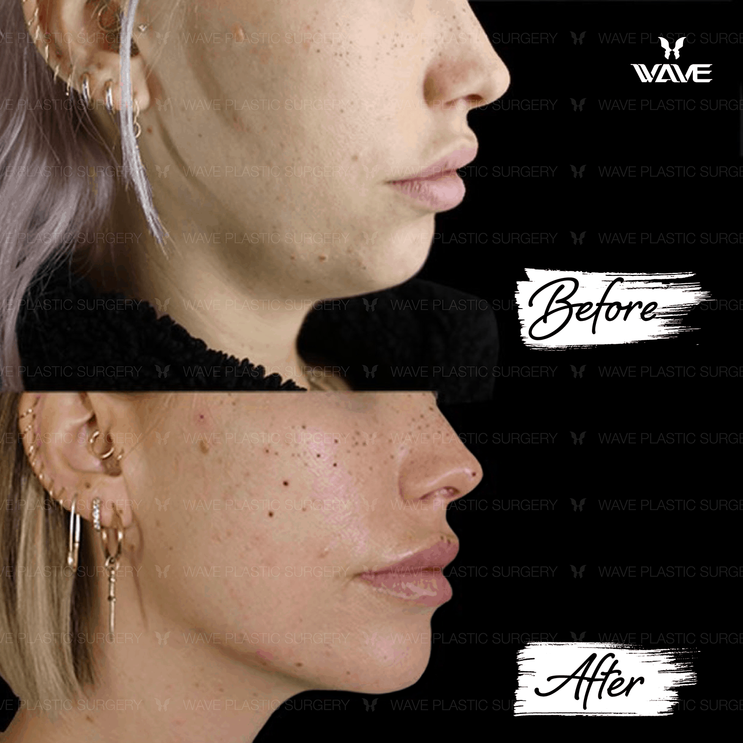 Non-Surgical Ultherapy